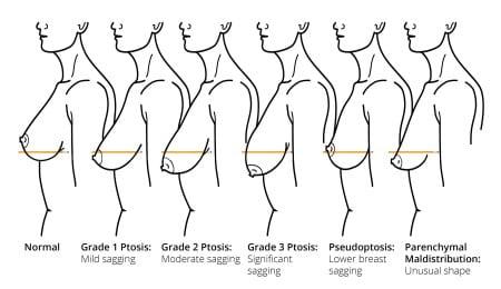 elevación de mamas