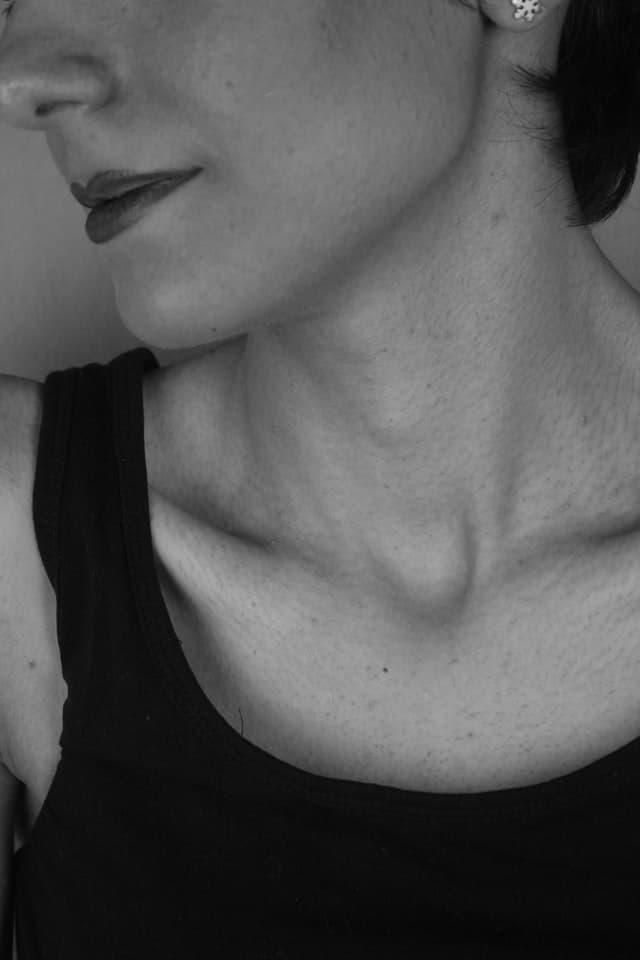rejuvenecimiento del cuello