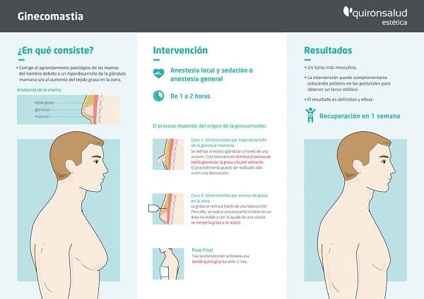 Todo lo que debes saber sobre la ginecomastia #infografía