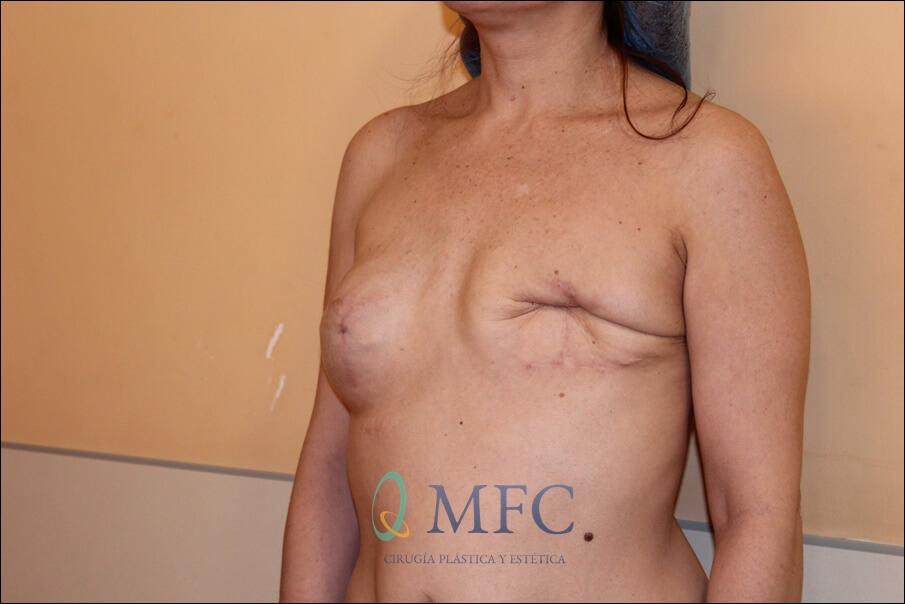 ejemplo cirugia mamaria secundaria