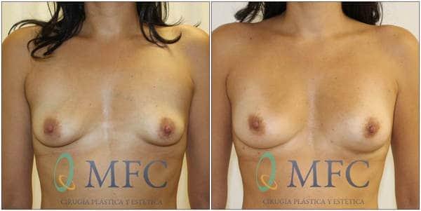 antes y despues aumento con lipofiling