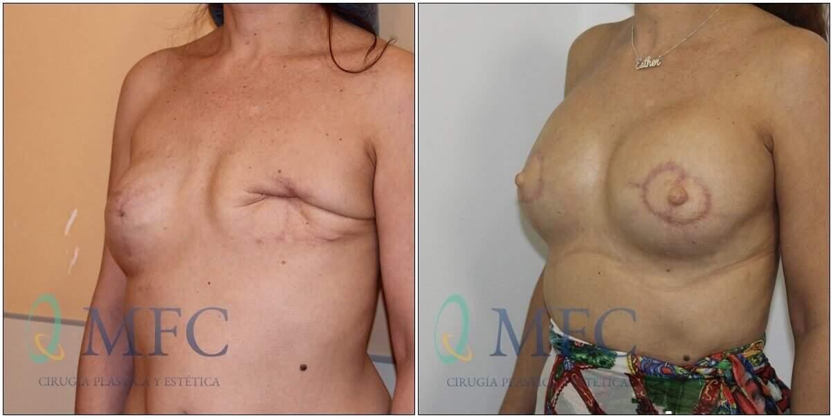 antes y despues cirugia reconstructiva (1)
