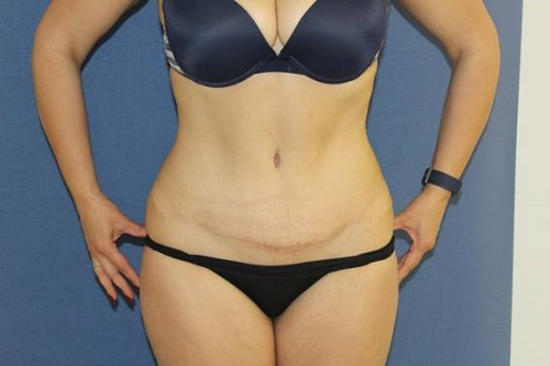 cicatriz ideal de abdominoplastia