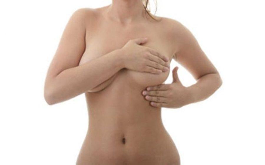 11 preguntas frecuentes sobre la mastopexia