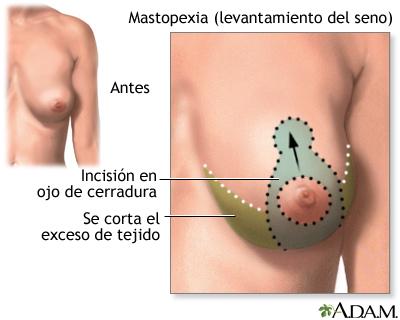 cirugia de maspexia