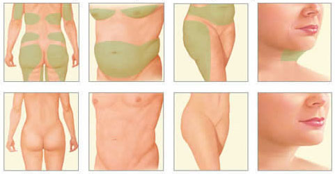 informacion sobre la liposuccion