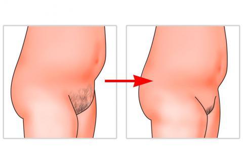 Antes y despues de la liposuccion del monte de venus
