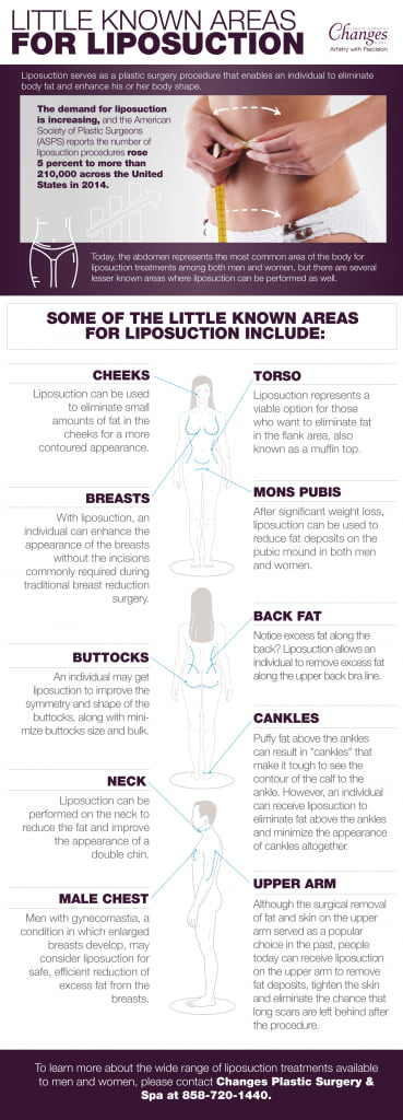 liposuccion infografia