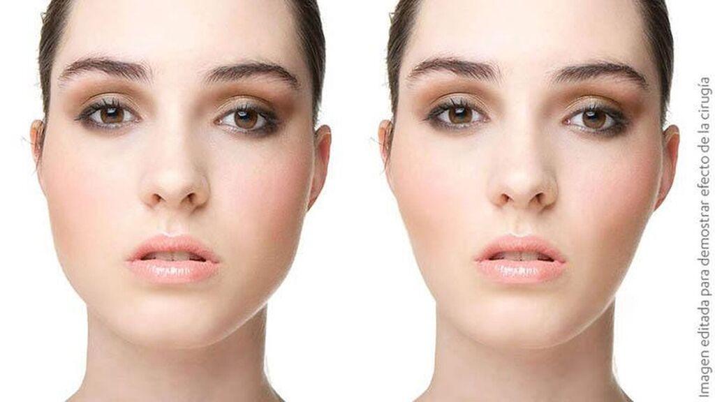 antes y despues de la bichectomia