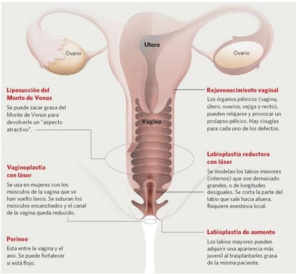 cirugías íntimas para mujeres