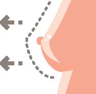 Aumento de pecho con lipofilling