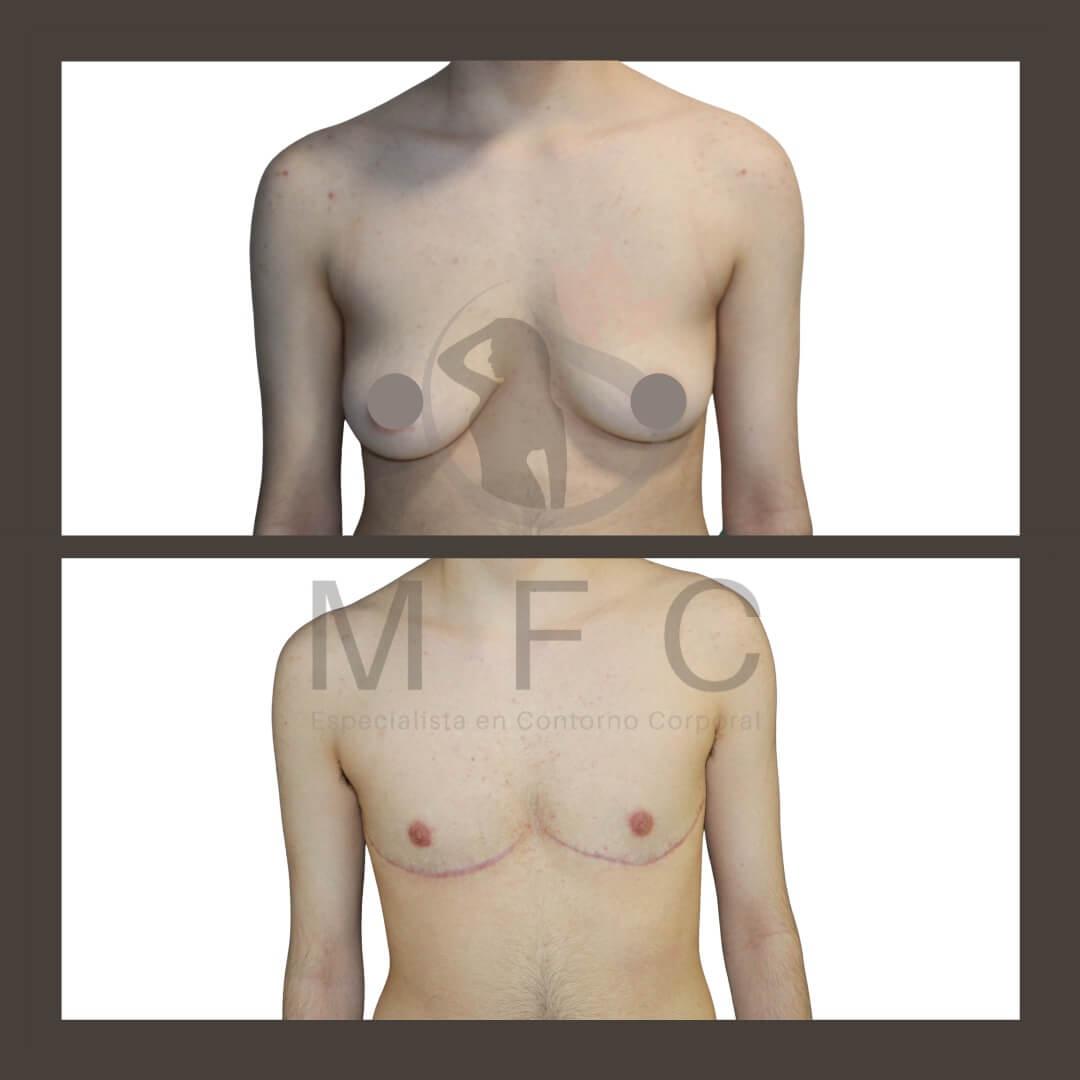mastectomia